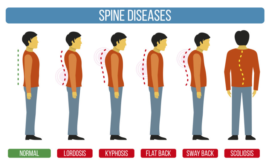 What is scoliosis and how is it characterized?